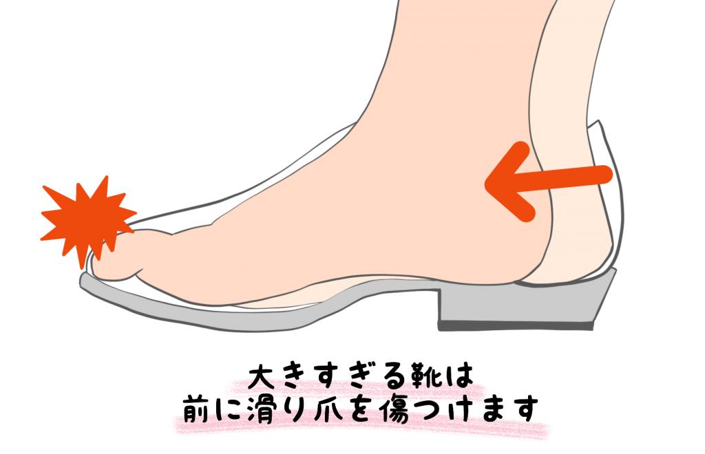 巻き爪の原因【金沢市のアルコット接骨院の巻き爪補正】