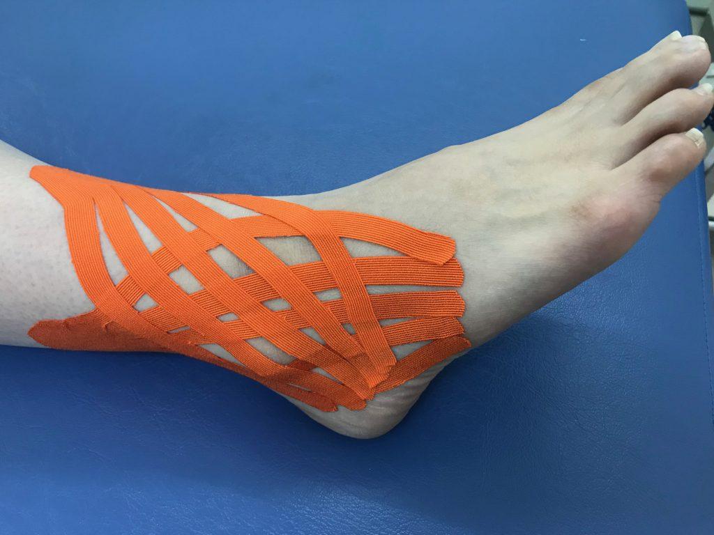 腓骨筋腱炎(急性期)テーピング