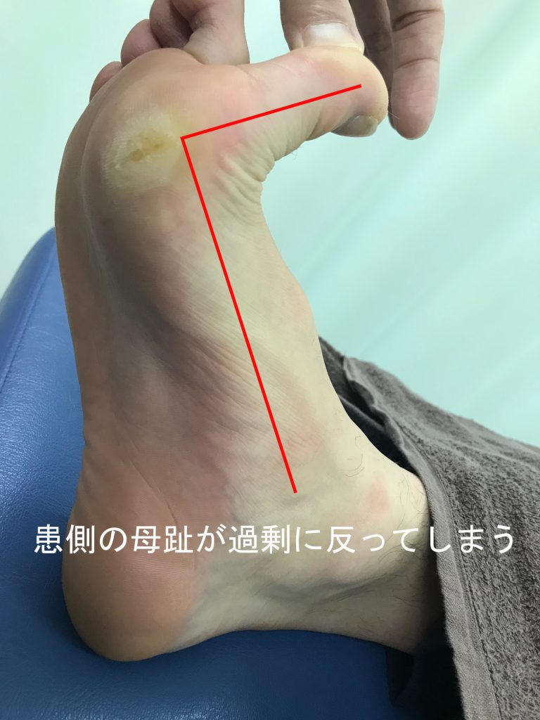 種子骨障害のテーピング法【金沢市のアルコット接骨院の疾患解説(足の裏の痛み)】