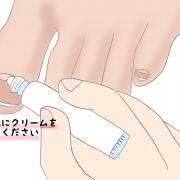 巻き爪予防(保湿)【金沢市のアルコット接骨院の巻き爪補正】