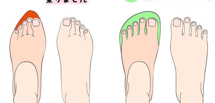 巻き爪と靴の関係