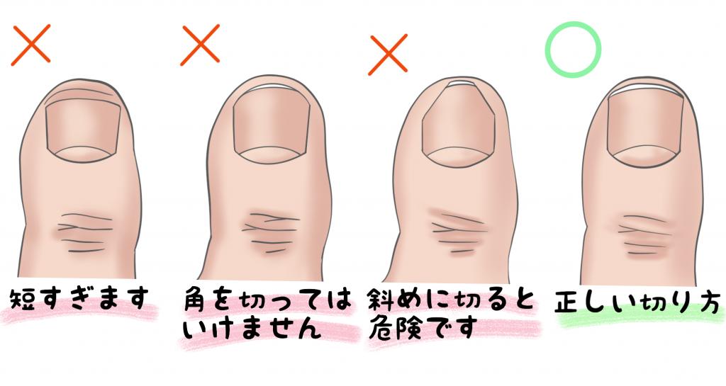 巻き爪正しい爪の切り方【金沢市のアルコット接骨院の巻き爪補正】