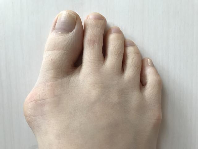 外反母趾の画像