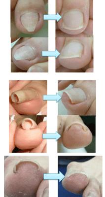 さまざまな巻き爪に対応、県外からも多数来院