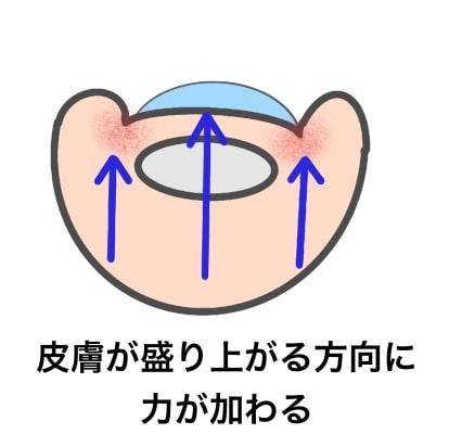 深爪(陥入爪)のメカニズム