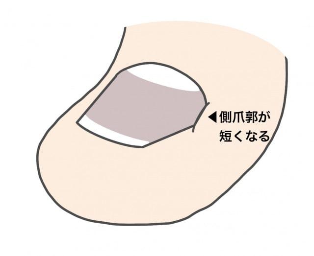 深爪のメカニズム