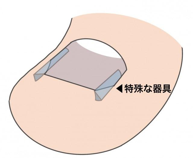 深爪の対処法