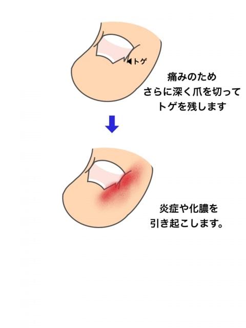 深爪が痛みを起こすメカニズム