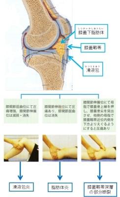 ジャンパー膝痛い場所2