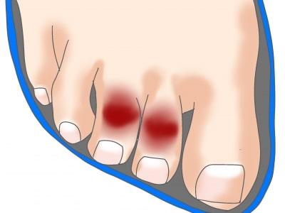 足趾の変形と合わない靴の関係