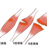 下肢の筋断裂・筋損傷 (肉ばなれ)について【金沢市アルコット接骨院】
