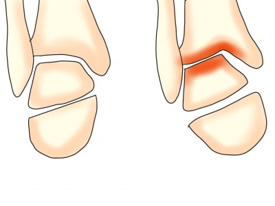 変形性足関節症のメカニズム