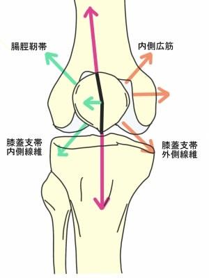 膝蓋大腿関節症外側への牽引力