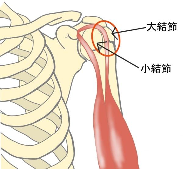 上腕二頭筋長頭腱の摩擦