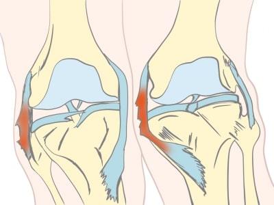 内側側副靭帯損傷、外側側副靭帯損傷