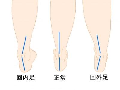 アキレス腱の傾き回内足回外