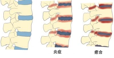強直性脊椎炎脊椎の変性