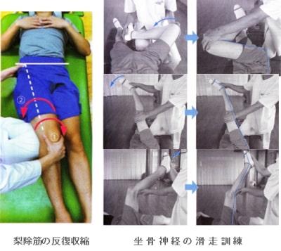 梨状筋症候群治療