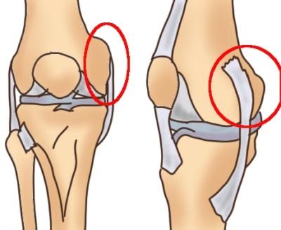 膝の外側顆、内側顆