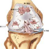 変形性膝関節症の原因や治療法【金沢市アルコット接骨院】