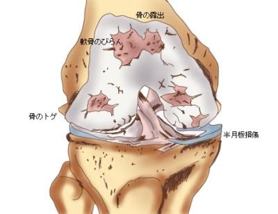 変形性膝関節症の膝の状態