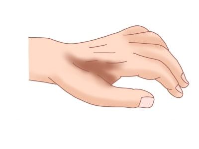 母指内転筋の萎縮