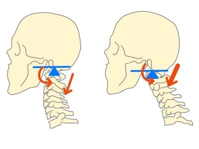 頚椎椎間板ヘルニア悪い姿勢