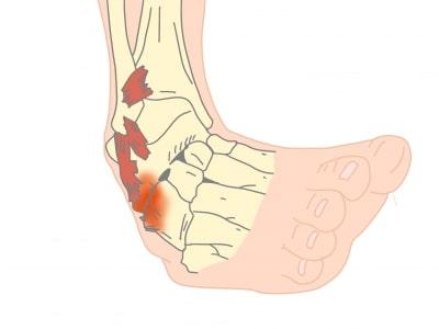 足根骨癒合症受傷