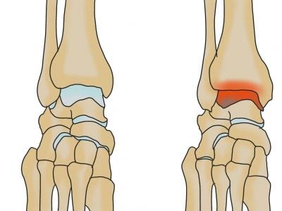 変形性足関節症とは