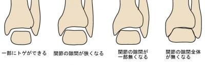 変形性足関節症の進行