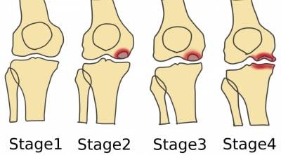 大腿骨内側顆骨壊死進行すると