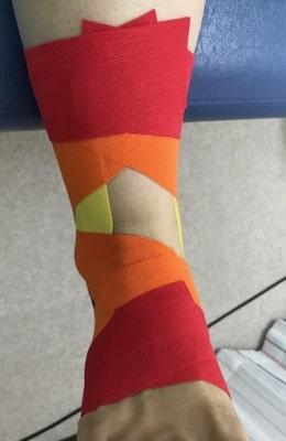 足関節捻挫テーピング【金沢市のアルコット接骨院の疾患解説】