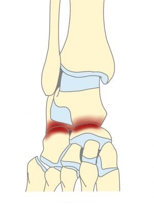 足根骨癒合症