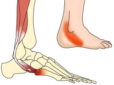 短腓骨筋付着部炎の痛みの部位