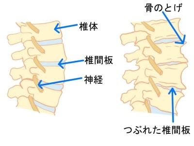 変形性腰椎症とは