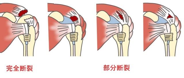 腱板損傷完全断裂部分断裂