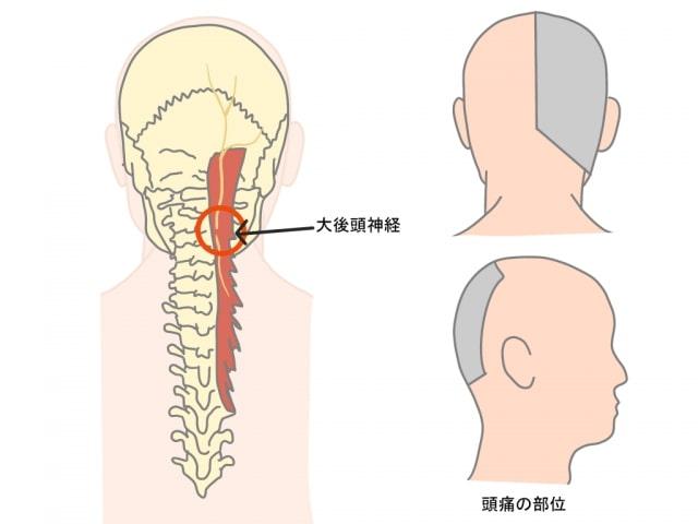 大後頭神経による頭痛とは