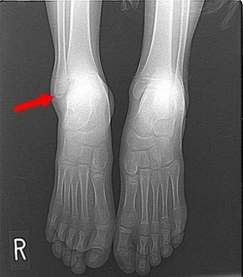 足首のネンザレントゲン