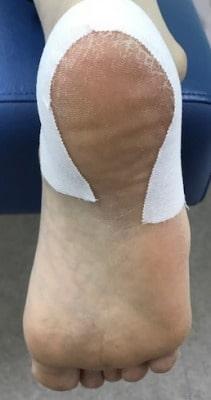 有痛性踵パッドテーピング【金沢市のアルコット接骨院の疾患解説】