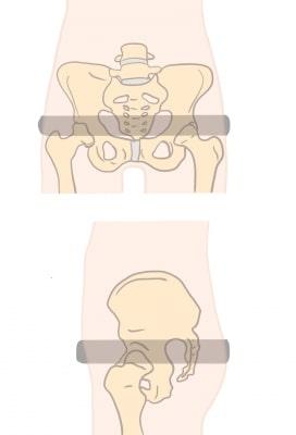 骨盤輪不安定症に対する骨盤ベルトの位置
