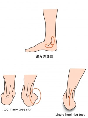 後脛骨筋腱機能不全症の症状