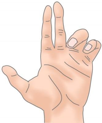 かぎ爪変形