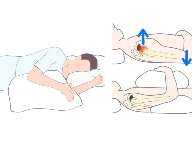 肩の夜間痛に対する対策
