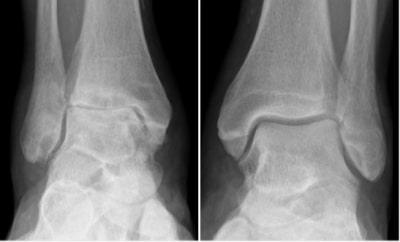 変形性足関節症レントゲン