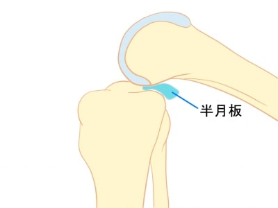 膝裏のつまり感【金沢市のアルコット接骨院の疾患解説】