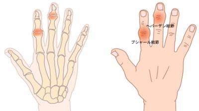 へバーデン結節とブシャール結節指の関節の腫れ