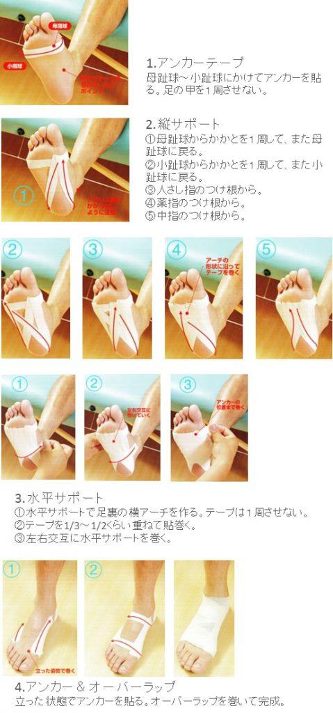 足底腱膜炎テーピング