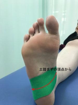 腓骨筋テーピング①【金沢市のアルコット接骨院】