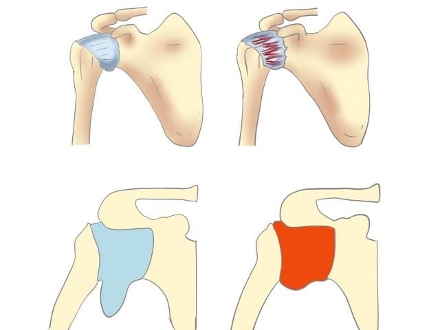 肩関節包の拘縮正常な肩との違い