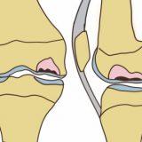 大腿骨顆部骨壊死の原因や治療法【金沢市アルコット接骨院】